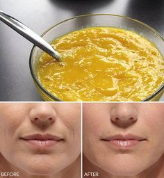 Get rid of wrinkles around the mouth