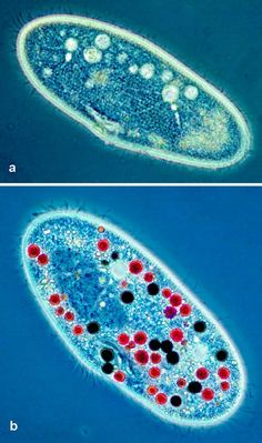 Paramecium cells....if you need a good picture of these little guys, this is the place!