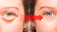 In this video, we will show you how to get rid of dark circles under eyes, swollen eyes and eyelids, puffy eyes and eye bags. Whether it's unsightly bags und. Puffy Eye Treatment, Ingrown Hair Serum, Dark Circle Remedies, Nose Pores, Under Eye Puffiness, Dark Circles Under Eyes, Under Eye Bags, Best Teeth Whitening, Puffy Eyes