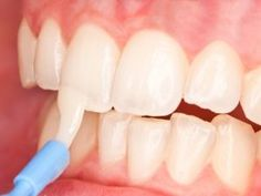 What is topical fluoride? Topical fluoride is applied on cleaned tooth surfaces to strengthen the teeth and help fight decay. Dental Health, Dental Care, Oral Health, Dental Bridge Cost, Gum Disease Treatment, Dental Hospital, Tooth Enamel, Tooth Powder