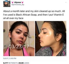 Skin Care Routine For Acne. Do you want the finest, tried and true skin-care tac. - Skin Care Routine For Acne. Do you want the finest, tried and true skin-care tactics? Skin Care Regimen, Skin Care Tips, Beauty Skin, Hair Beauty, Beauty Tips, Beauty Care, Beauty Ideas, Haut Routine, Beauty Hacks For Teens