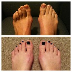 My mom's feet and mine before and at 4 months after our double bunionectomy. http://bunionsbegone.blogspot.com/2013/02/before-and-after-comparison-mother-and.html