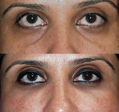 Sunken Eyes Causes, Sunken Eyes Treatment, Sunken Eyes, Eyes Dark Circles, Sunken Eyes Makeup, Sunken Eyes Causes, Beautiful Eyes, Eye Makeup, Look Beautiful Naturally, Eye Care Tips, Tips For Eyes