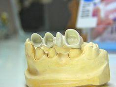 Cofia o estructura interna de la corona. dr.adrianco@gmail.com Cali, Colombia, Muñon o diente tallado para recibir la corona.