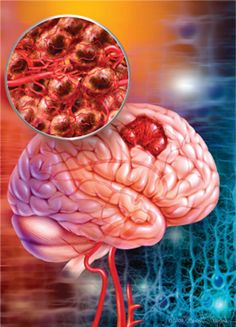 Noticing brain cancer symptoms survival rates for brain tumor depends on various factors, such as the location of the tumor in the brain, the size and type of tumor and stage of the tumor, accordingly proper treatments is important.
