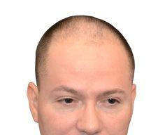 hair loss cure minneapolis