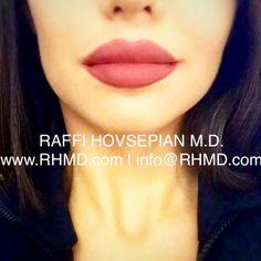 "Patient of Dr. Raffi Hovsepian who underwent ""Lip Augmentation"" using Lip Filler. For more information please visit www.RHMD.com / (310) 999-1003  #juvederm #restylane #voluma #Lip #lipfiller #lipaugmentation #ducklips #lips #drraffihovsepian #RaffiHovsepianMD #plasticsurgery #raffihovsepian #RHMD #BeverlyHills #plasticsurgery #Beverlyhillsplasticsurgery #Beverlhillslipfiller #beverlyhillslips"