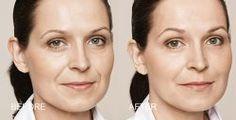 Recupera el volumen facial perdido con el paso de los años gracias a los rellenos con Ácido Hialurónico en Clínica Sarabia www.clinicasarabia.es