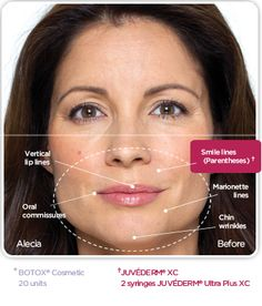JUVÉDERM® XC instantly smoothes wrinkles around your mouth and nose