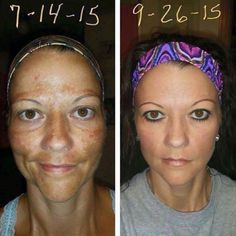 """Another Rodan + Fields Reverse success story! If You're going to use something on your skin, why not use the best?!   Changing Skin ~ Changing Lives   From R+F Customer Michelle Martin:  """"Well, here goes nothing.....I am getting nothing by promoting this product, just sharing in hopes of helping anyone else who WAS in the same boat I was in!!! I have only eyeliner, mascara, and lip gloss. Not one drop of concealer, foundation, or powder!! This is what Rodan+Fields Reverse pro"""