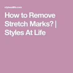 How to Remove Stretch Marks? | Styles At Life