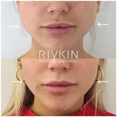 "NON SURGICAL 💉 FILLERS 💉 BOTOX on Instagram: ""Botox Facial Slimming ⁣👌 Swipe for more angles 👀 ⁣ We see a number of patients with a wide lower face (masseter muscle fullness) who…"""