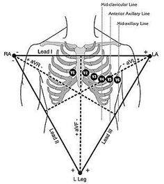 nice septic shock diagram    pinterest com  laycal