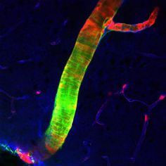 Brain's Drain: Neuroscientists Discover Cranial Cleansing System