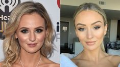 alexis waters bachelor plastic surgery - Google Search