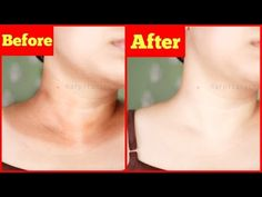 How to Get Rid of Dark Black Neck in 20 Minutes. Instant Magic Treatment at Home. Natural and Effective. Good Skin Tips, Beauty Tips For Skin, Natural Beauty Tips, Beauty Skin, Natural Skin Care, Skin Care Tips, Dark Skin Around Neck, Dark Neck Remedies, Armpit Whitening