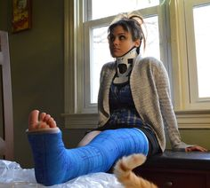 #cast #gips #arm #leg #brokenarm #brokenleg #armcast #legcast #castfetish #plaster #plastercast #gesso #yeso #gipsz #platre #legs #crutches #fibercast #foot #feet #broken #castsock #footfetish #injury #cripple #plaaster #gipsbein #kipsi #crutches