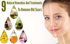 Feeling embarrassed and annoyed about having scars? Here are few remedies on how to remove old scars, try this to make your skin scar free. Now you can expose yourself confidently.