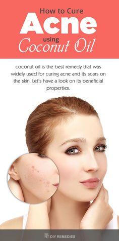 Clear Skin Tips | Skin Care Acne Tips Using Coconut Oil