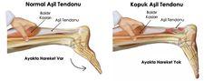 Tendon bağlarının güçlenmesi için uygulanacak doğal formüller : Tendon bağı nedir vücutta ne işe yarar?: Dizin hareket etmesini sağlayan noktalarında …