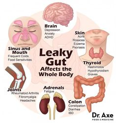 Did you know that your health problems may be a result of leaky gut syndrome? The symptoms of leaky gut can include food intolerances, skin issues and more. Thyroid Health, Gut Health, Health And Nutrition, Health Facts, Health Tips, Liver Detox Symptoms, Intestino Permeable, Leaky Gut Diet, Leaky Gut Syndrome