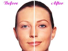 $ 100 Off ANY New Permanent Make-Up Procedure! Up to a $ 400 Value