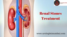 Dr. Pradeep rao is one of the best Kidney specialist in Mumbai provides solutions for renal related diseases