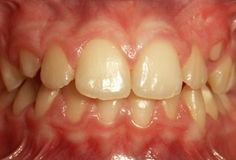 Studio Dentistico Balestro: Affollamento dentale