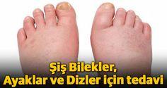 Şiş Bilekler, Ayaklar ve Dizler için tedavi mümkün mü ?Ayak bilekleri, ayaklar ve dizler ağırlığınızı desteklemenin yanı sıra beslenme, hormonal ...