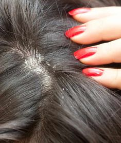 9 Simple Home Remedies For Dandruff That Worked Wonders For Me | StyleCraze