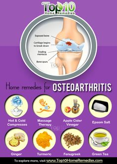 Prev post1 of 3Next Osteoarthritis, also known as degenerative joint disease or osteoarthrosis, is the most common form of arthritis. It occurs due to the breakdown of cartilage in joints, which causes the bones to rub against each other. According to Centers for Disease Control and Prevention, about 27 million people in America have osteoarthritis.