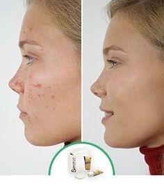 Léloignement de la pigmentation sur la personne par le laser de la clinique