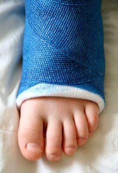 Having a broken foot can sideline your usual workout routine. However, you can still strength train and use your arms to do aerobic exercise with a broken foot. Ankle Cast, Leg Cast, Broken Ankle Recovery, Leg Injury, Ankle Injuries, Ankle Exercises, Pilates, Ankle Surgery, Broken Foot