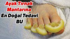 Ayak tırnak mantarına doğal tedaviler | Mucize Tadında