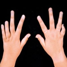 HOW TO TREAT JUVENILE RHEUMATOID ARTHRITIS WITH PHYSICAL THERAPY