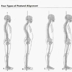 Posture is the window to the spine.  What's yours like?