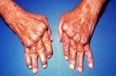 Remicade Medications For Rheumatoid Arthritis. Looking at this picture scares me to death. I know I do not have RA this bad, but in another 40 years maybe my hands will look like this. Rheumatoid Arthritis Medications, Ra Arthritis, Arthritis Exercises, Health And Wellness, Health Care, Rheumatic Diseases, Medical Information, Primary Care, Alternative Health