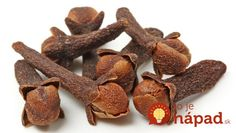 Clove Oil And Toothache - Clove or clove oil is very well known in herbal medicine.It has antiseptic activity and anesthetic effect if applied topically. Home Remedy For Headache, Headache Remedies, Herbal Remedies, Clove Essential Oil, Doterra Essential Oils, Pure Essential, Natural Cures, Natural Healing, Natural Treatments