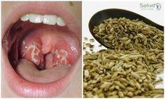 amigdalitis remedios caseros