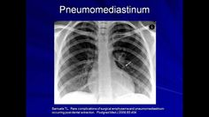 Dr. Eric Strong, of Standford University: Lung Protective Ventilation (Mechanical Ventilation - Lecture 9)