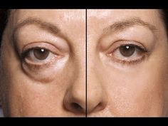 How to Cure Puffy Eyes - YouTube