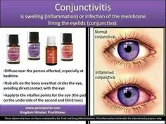 Treating Pink Eye with Young living essential oil. by Sugarbean