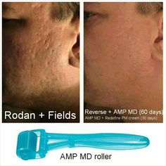 #rodanandfields is not just for women! It's for anyone with #skin. Our AMP MD is non invasive and clinically proven to diminish #wrinkles and improve #firmness. Great for #men too! Look what our #ampmd #cosmetic tool can do to improve #tone #texture and #smoothness of your #face. Great for old #acne #scars too! Contact in bio. #skin #skincare #skintransformations #redefine #beauty #beautiful #health #facial #roller #microdermabrasion #microexfoliaton
