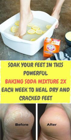 cracked skin on heels The most common foot problem heels, may range from decorative to a debilitating matter. In that case, cracks are usually obvious, your skin may have a callus Dry Cracked Feet, Cracked Skin, Foot Remedies, Health Remedies, Herbal Remedies, Cracked Feet Remedies, Cracked Heals Remedy, Natural Remedies, Nail Salon And Spa