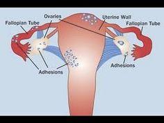 Endometriosis Alternative Healing - Natural Endometriosis Treatment Options | Treatment for Endometriosis