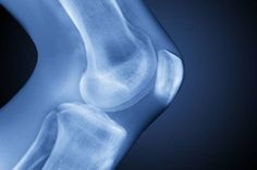 Osteoarthritis (OA) is a degenerative joint disease most often affecting major joints such as knees, hands, back, or hips. Osteoarthritis symptoms include pain, swelling and joint inflammation. Rheumatoid Arthritis Treatment, Knee Arthritis, Arthritis Symptoms, Human Knee, Bone Fracture, Hormone Replacement Therapy, Knee Pain, Homeopathy, Chronic Pain