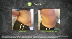 Belly success after one wrap.  A full treatment is a box of 4.