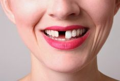 Gaps in your smile can affect your self-confidence, your bite and your jawbone. It is important to replace missing teeth because...