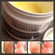 """The Rodan+Fields Enhancements Micro-Dermabrasion Paste isn't just for the usual arms & legs!  I LOVE using it my feet also. Get those feet """"flip-flop ready""""!  $69 preferred customer price."""