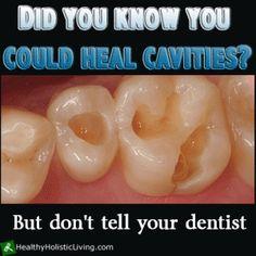 heal cavities-comprehensive info